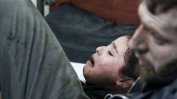 A Syrian girl lies at a hospital after air raids targeted her hometown in Eastern Ghouta.