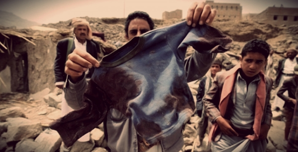 Man shows the clothes of a child, victim of the armed conflict in Yemen