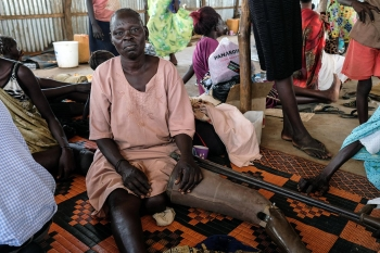 A Shilluk women forced to flee Malakal, South Sudan, after a bullet struck her left thigh during fighting in 2014  Credits: